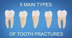 """diagram of teeth with the words """"5 main types of tooth fractures"""""""