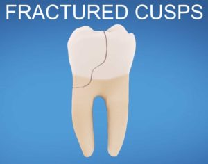 tooth with fractured cusp