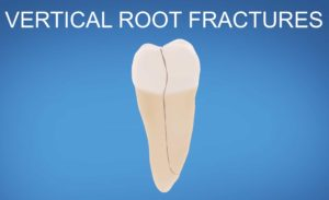tooth with vertical fracture